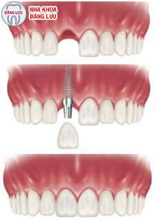 Cấy ghép răng Implant có tốt không? 1