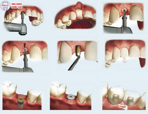 Địa chỉ trồng răng Implant tốt nhất ở đâu? 4