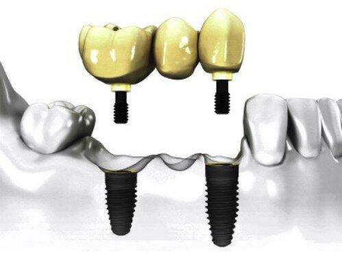 Vì sao phải nâng xoang khi cấy ghép implant ?