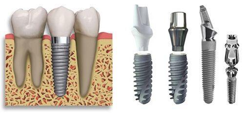 Cấy ghép răng implant có tốt không?