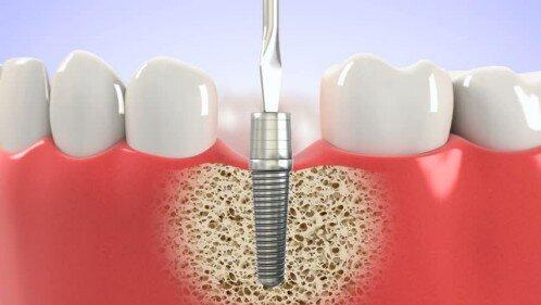 Cấy ghép trụ implant có ảnh hưởng sức khỏe không ?
