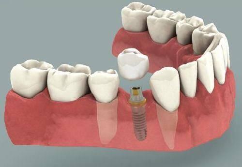 cay-rang-implant-o-dau-tot-nhat-1