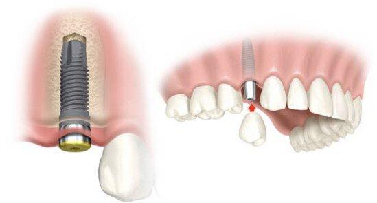 chăm sóc implant thế nào cho hiệu