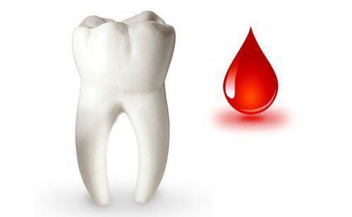 Ai không đủ điều kiện trồng răng implant ?