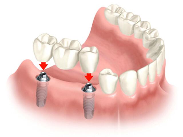 Chăm sóc răng Implant như thế nào?