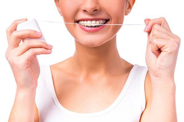 chăm sóc răng khi niềng răng