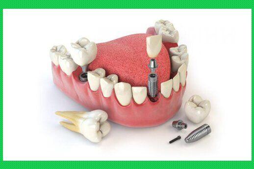 cham-soc-rang-implant