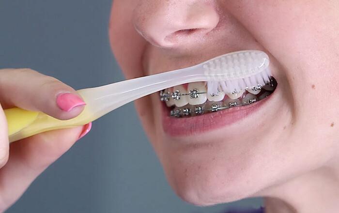 niềng răng mắc cài cần lưu ý điều gì