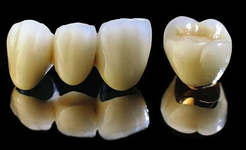 Chăm sóc răng sứ Titan ra sao?