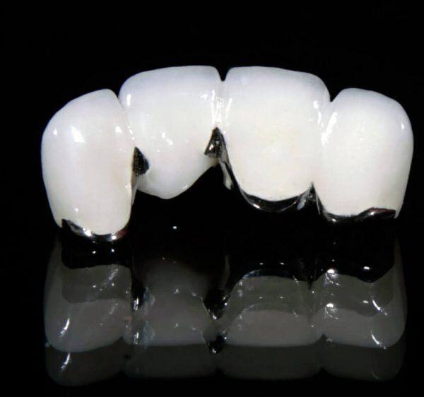 Cách chăm sóc sau khi bọc răng sứ kim loại ra sao?