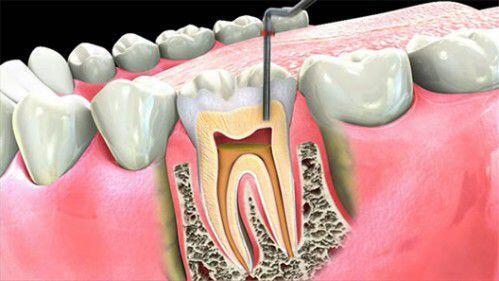 Nguyên nhân và triệu chứng của bệnh viêm tủy răng