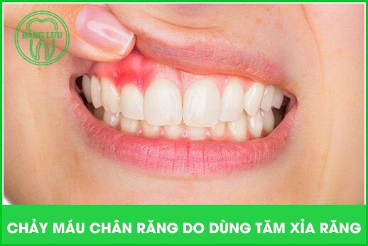 Viêm lợi do chải răng sai cách