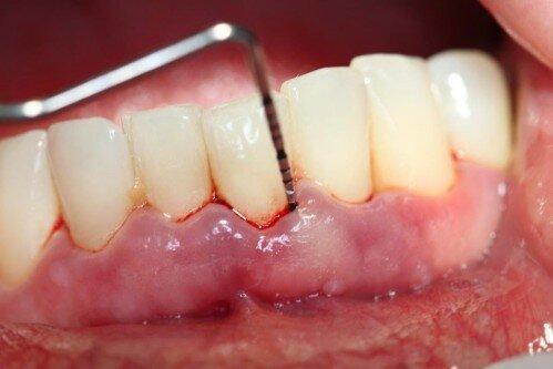 Chảy máu chân răng có phải là dấu hiệu của bệnh răng miệng