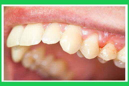 Nguyên nhân nướu răng bị chảy máu 3