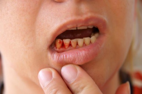 Chảy máu chân răng phải làm thế nào ?