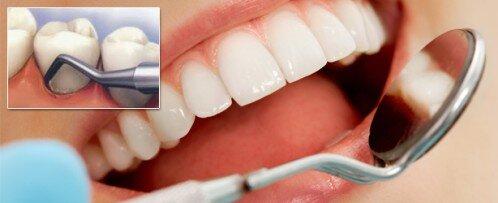 Chảy máu chân răng nên uống thuốc gì ?