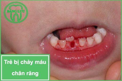 trẻ bị chảy máu chân răng