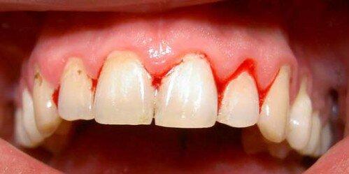 Vì sao không nên dùng tăm xỉa răng ?