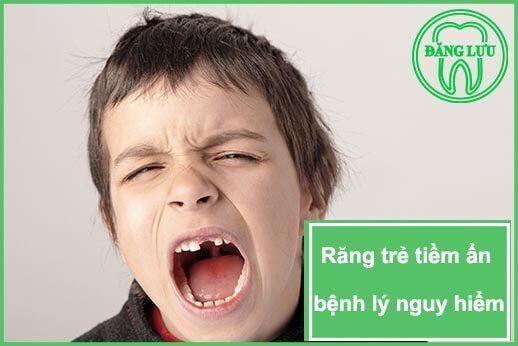 chảy máu chân răng ở trẻ em có nguy hiểm không?