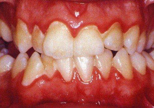 Chảy máu nướu răng đừng xem nhẹ