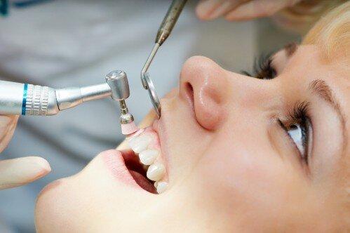 Cạo vôi răng bao lâu một lần và có hiệu quả không? 3