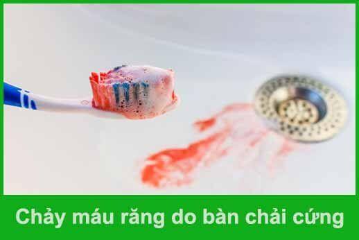 chải răng sai cách làm chảy máu răng