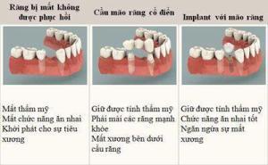 Chi phí cấy ghép implant