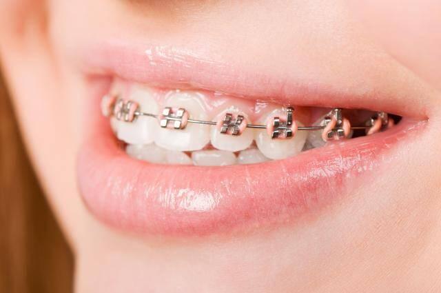 Chi phí niềng răng hô giá bao nhiêu tiền?