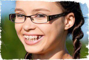 Chỉnh hình răng - chỉnh nha là gì?