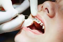 chỉnh hình răng chỉnh nha là gì?