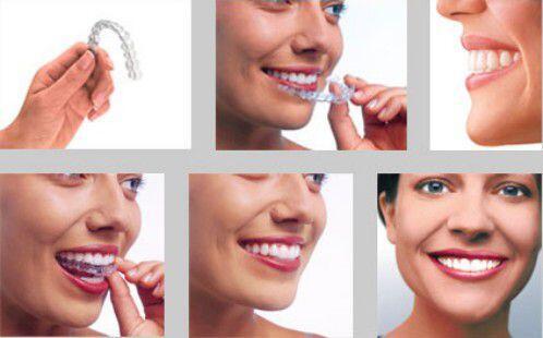 Chỉnh hình răng hàm mặt là gì ?