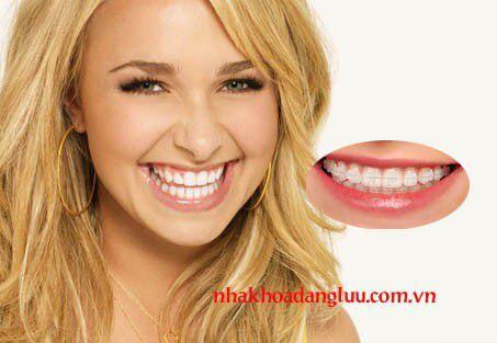 Niềng răng điều trị hô trong bao lâu ?