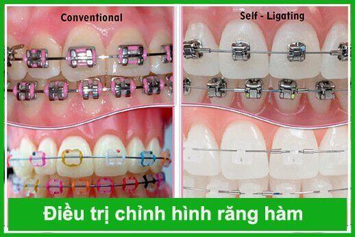 chỉnh hình răng