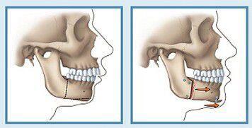 Chỉnh nha niềng răng cho trường hợp răng hô