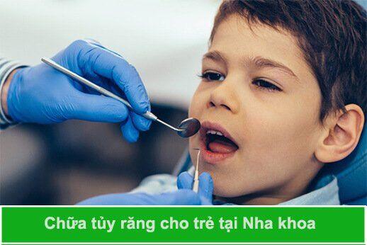 chữa tủy răng cho trẻ