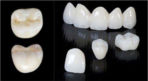 Chụp răng sứ là gì