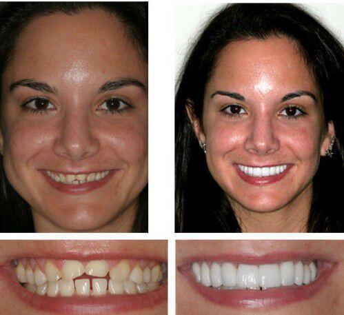 Tại sao làm răng sứ lại hạn chế được bệnh lý ?