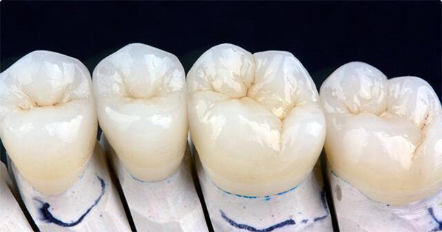 Có nên bọc răng sứ Lava Plus hay không?