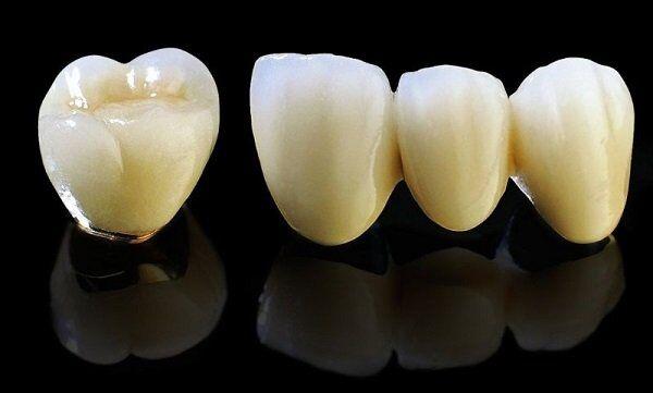 Có nên bọc răng sứ Titan cho răng hàm bị sâu hay không?