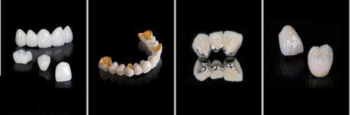 có nên bọc sứ cho răng cửa khôngcó nên bọc sứ cho răng cửa không