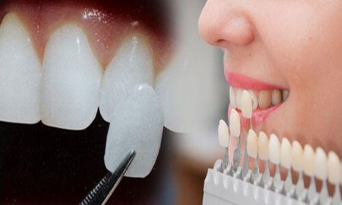 có nên bọc sứ cho răng cửa không