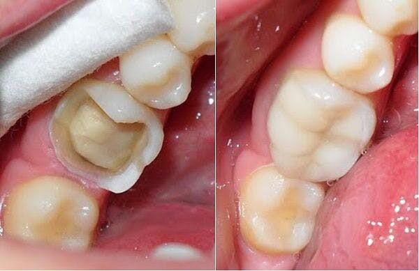 Có nên làm răng sứ Cercon cho răng hàm hay không?