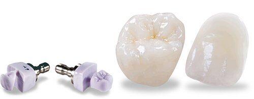 Có nên làm răng sứ Cercon HT cho răng sâu