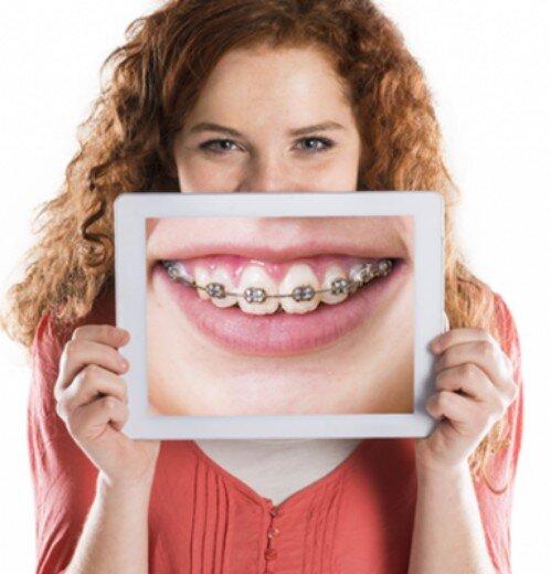 Có nên nhổ răng khi chỉnh nha