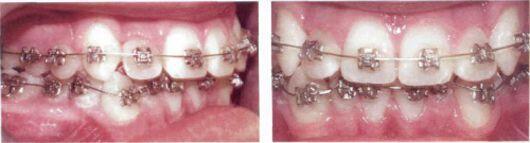 Có nên niềng răng khểnh không ?