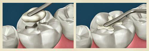 Có nên trám răng bằng composite không ?