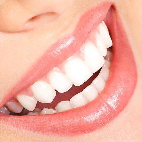 Có thể tẩy trắng răng khi vừa chữa nha chu không ?
