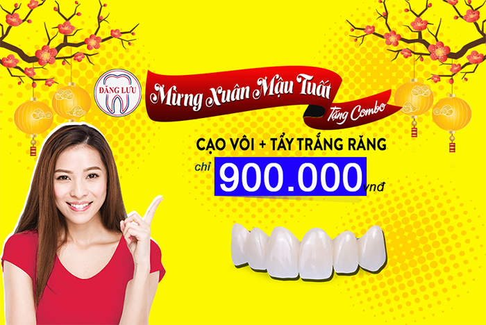 Combo thẩm mỹ răng mừng xuân Mậu Tuất chỉ 900.000 VNĐ