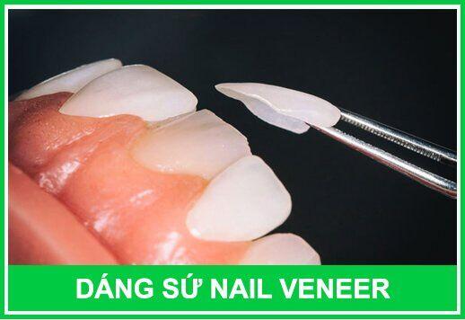 nguyên nhân răng bị nhiễm màu nội sinh