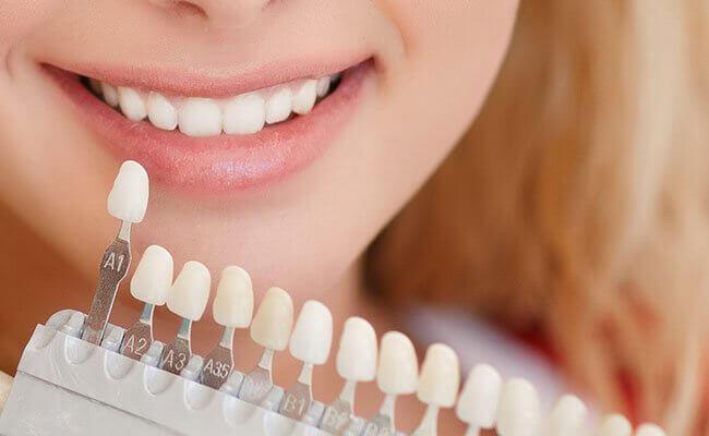 răng sứ siêu mỏng